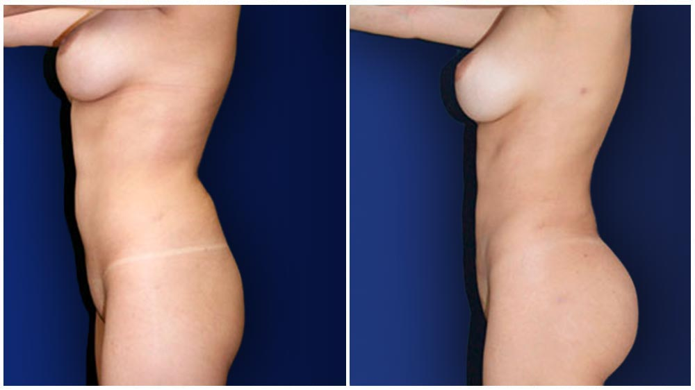 New York City Liposuction Specialty Clinic -  Fat Transfer to Buttocks Patient
